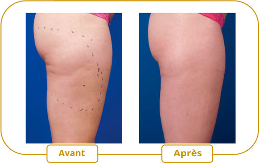 Traitement Venus Freeze - Cellulite