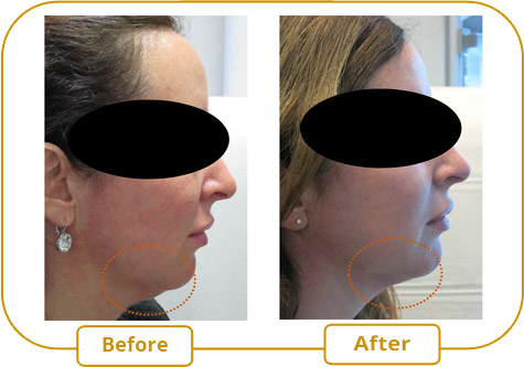 Belkyra - Double chin treatment without surgery