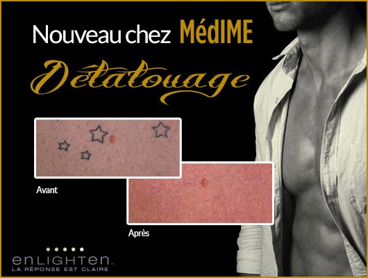banner-enlighten-homme