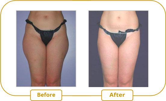 Ultrashape V3 Treatment - Lateral Thighs