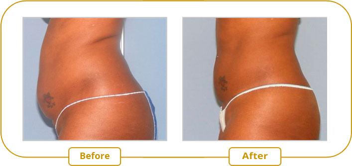 Ultrashape V3 Treatment - Lower Abdomen