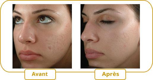Traitement des cicatrices d'acné avec eMatrix