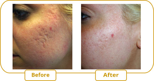 Treatment of acne scars with eMatrix