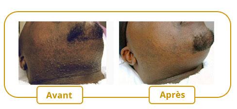 La tache de pigment autour du cou
