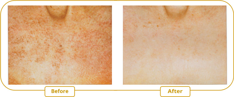 Pigment spots treatment - Cleavage