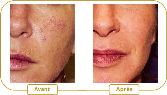 Couperose rosac e et veines dilat es traitement au - Araignee rouge traitement naturel ...