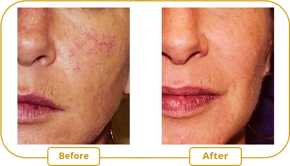 Rosacea Laser treatment with VBeam Perfecta