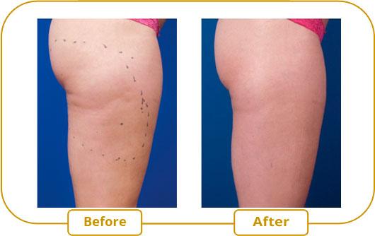 Traitement Venus Freeze - Cellulite