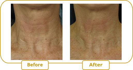Neck wrinkle treatment with eMatrix