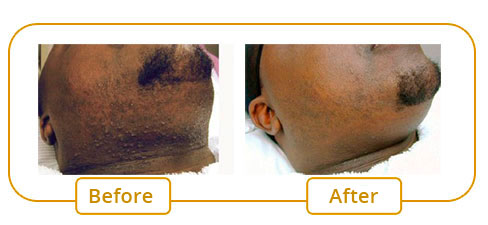 Nd:Yag laser Treatment - Pseudo folliculitis of the beard, blemishes and scars