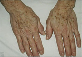 laser pour les taches et la texture de la peau - Lentigo sur les mains