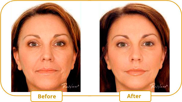 Restylane and Perlane injections