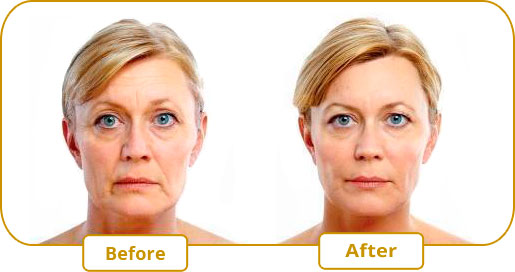 The Soft Lift – A non-surgical lift combining Botox and Juvederm