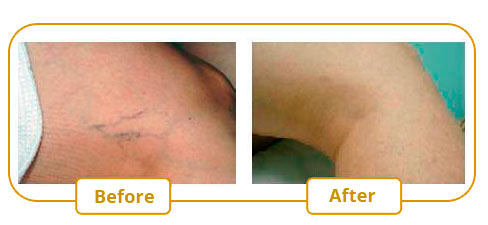YAG Laser Varicose Vein Treatment