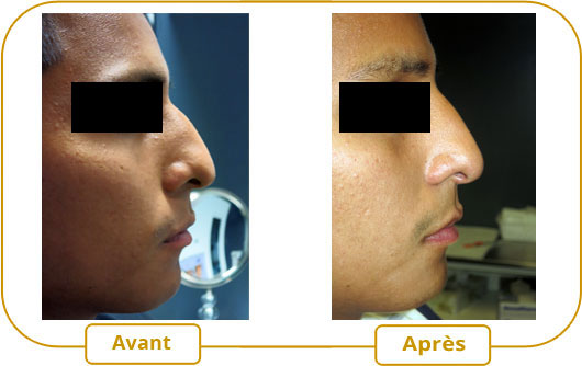 Rhinoplastie sans chirurgie(correction du nez)