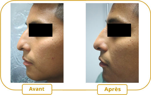 rhinoplastie correction du nez sans chirurgie m dime montr al. Black Bedroom Furniture Sets. Home Design Ideas