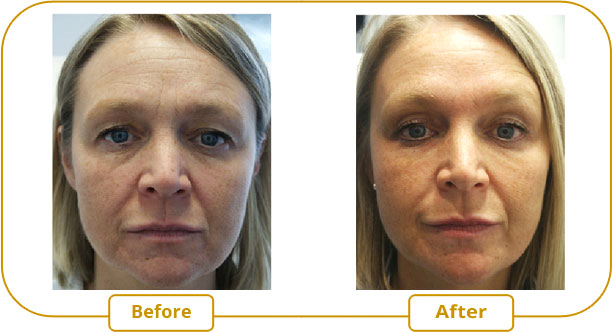 A lift eyelids without surgery with Botox injection.