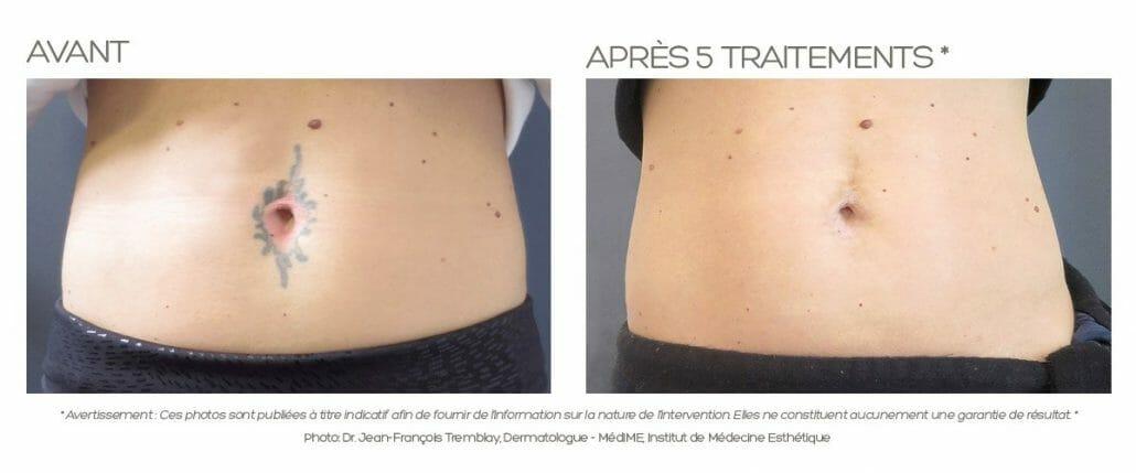 Enlighten ™ pour effacer les tatouages et détatouage par dr Jean-François Tremblay