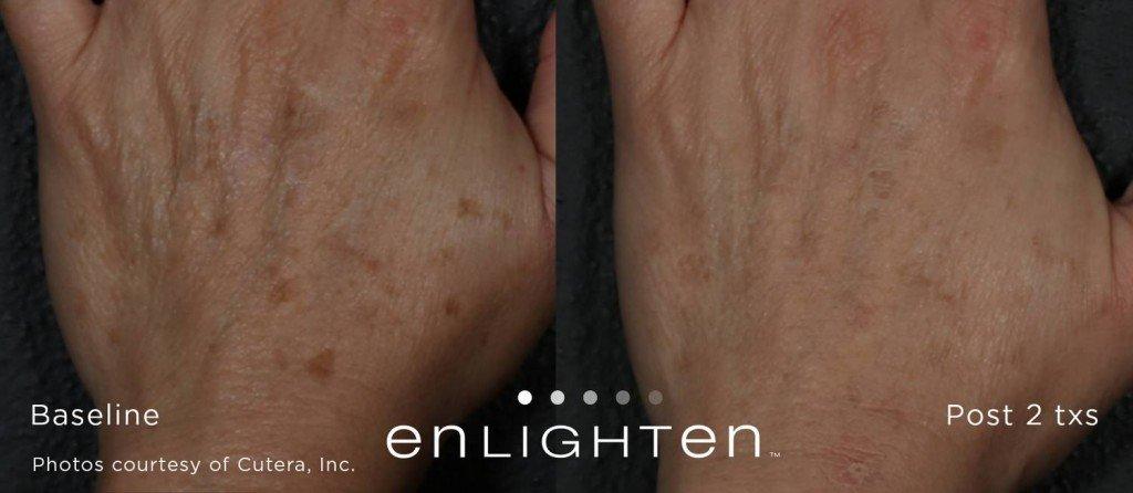 Enlighten ™ pour enlever les taches brunes sur les mains