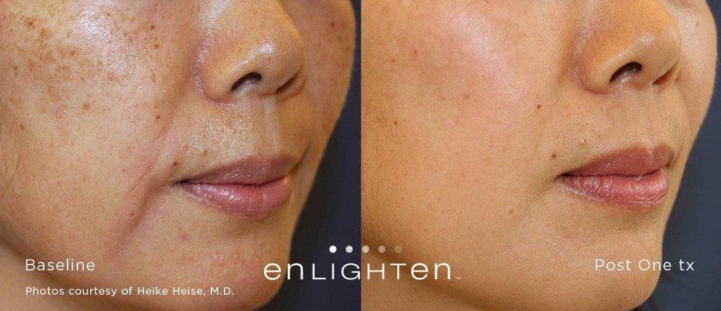 Enlighten ™ pour enlever les taches brunes du visage