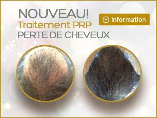 PRP perte de cheveux