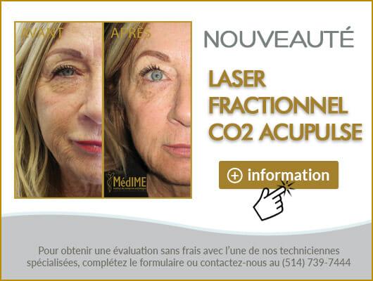 co2-acupulse-fr
