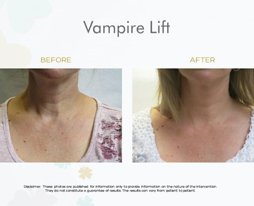 VAMPIRE LIFT (skin rejuvenation PRP – microneedling)