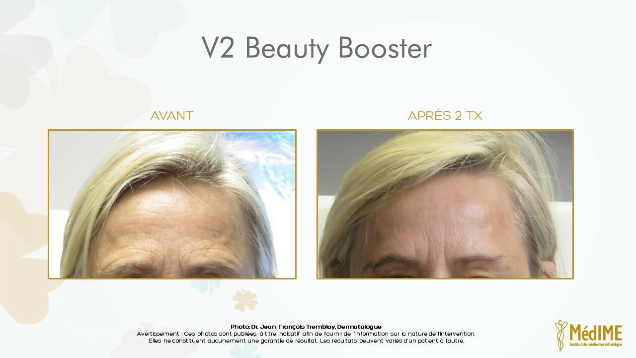 v2-beauty-booster-avant-apres-2
