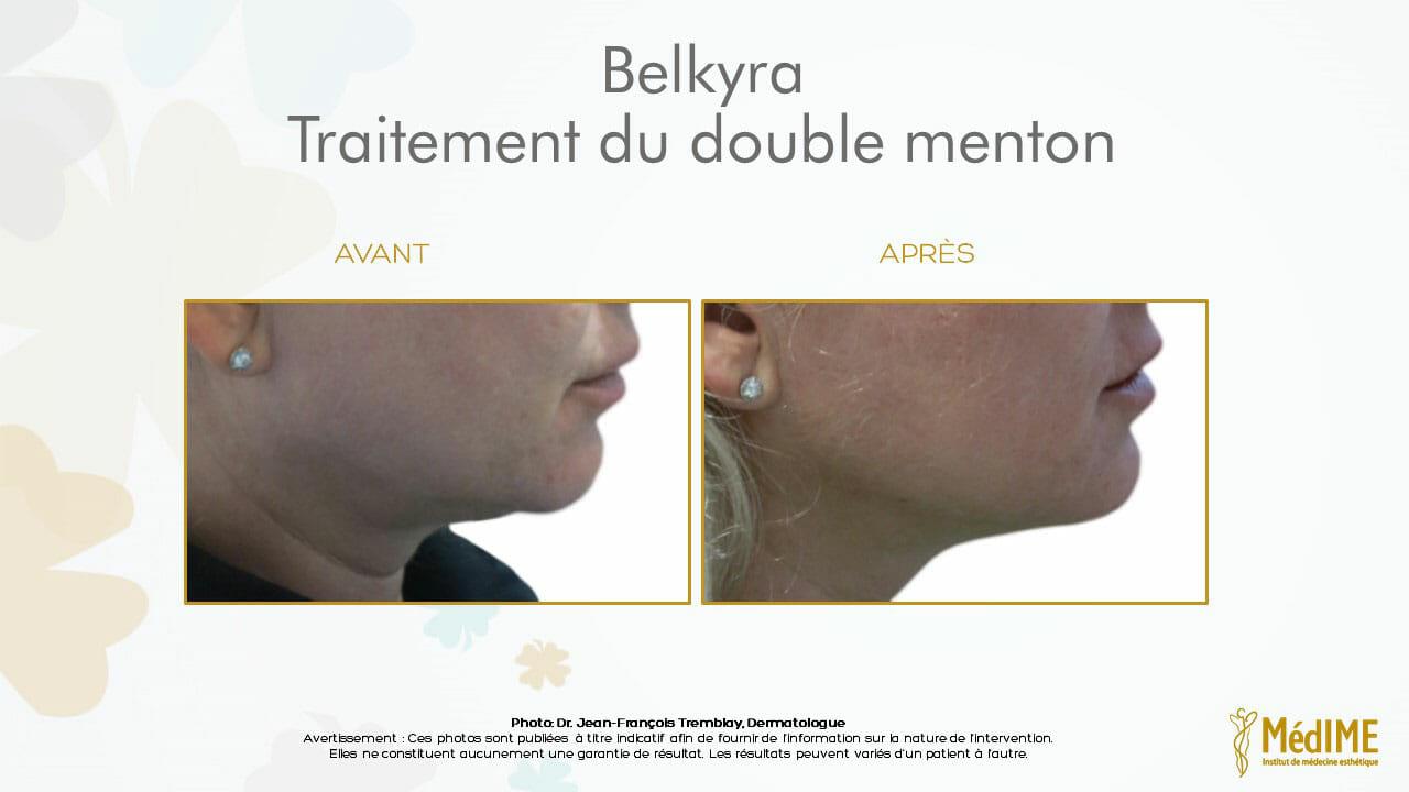avant-apres-triatemenr-double-menton-belkyra